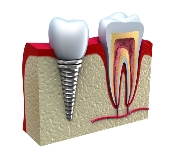 dental implants coraopolis pa