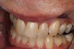 White-Filling-for-Discolored-Teeth-After-Image