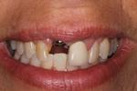 Smile-Transformed-with-a-Dental-Implant-Before-Image