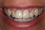 Smile-Transformed-with-a-Dental-Implant-After-Image