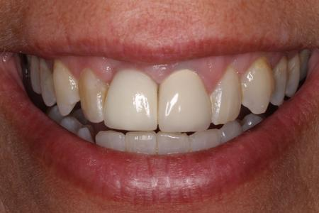 Smile Transformed with a Dental Implant